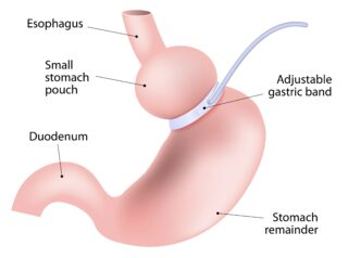Inel gastric.