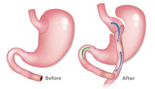 Gastric by-pass.
