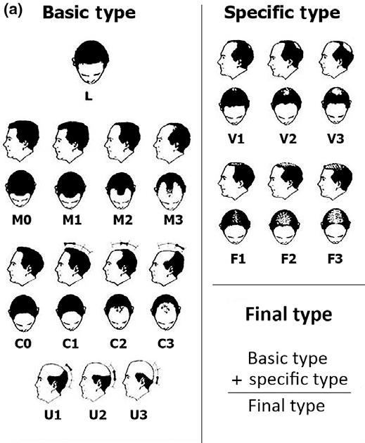 Tipuri de alopecie