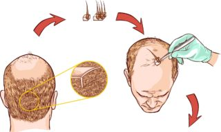 Tratament chirurgical in alopecie