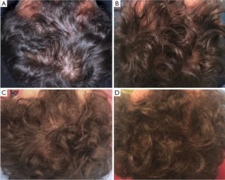 Pacient cu alopecie dupa tratamentul Rigenera