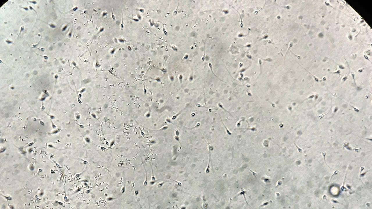 Spermatozoizi la microscop
