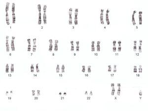 Malformatie genetica