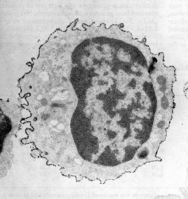 Limfocit T