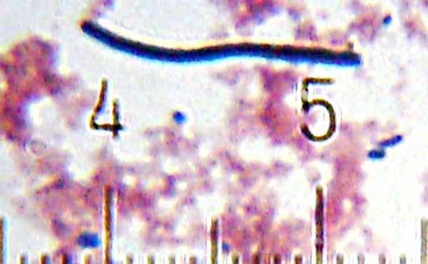 Lactobacillus delbrueckii subsp. bulgaricus