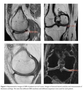 Tratament artroza Rigenera caz II