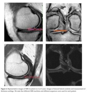 Tratament artroza Rigenera caz III